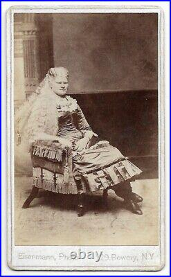 Antique ALBINO LADY Lulu Vann CIRCUS SIDESHOW Performer CDV PHOTO Chas Eisenmann