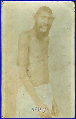 GONDIO PINHEAD Rare Antique Circus SIDESHOW FREAK PHOTO Monkey Boy! MICROCEPHALY