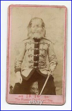 JoJo The Russian Dog Faced Boy, Antique Circus Sideshow Cdv Photo Rare